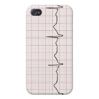 Latido del corazón en el papel cuadriculado, pulso iPhone 4 cárcasa
