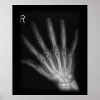 Mano derecha adicional de la radiografía del dígit posters