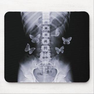 Mariposas conceptuales Mousepad de la radiografía Alfombrilla De Ratón