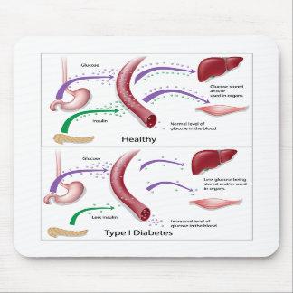 Mousepad del tipo 1 de la diabetes
