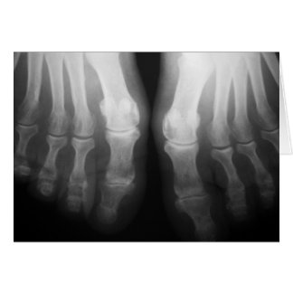Negro y blanco esqueléticos humanos de huesos de l tarjeta pequeña