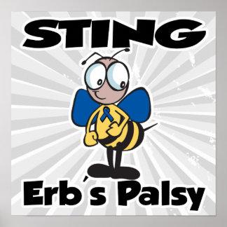 Parálisis de STING Erbs Póster
