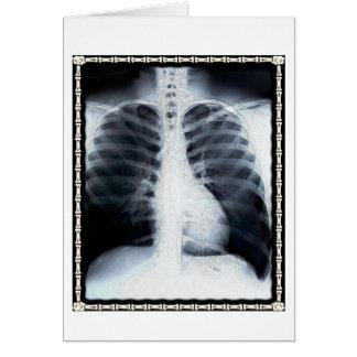Pecho de la radiografía tarjeta
