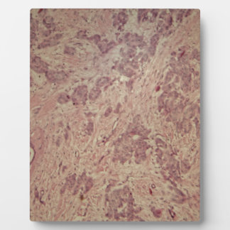 Placa Expositora Cáncer de pecho debajo del microscopio
