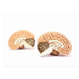 Postal Modelo de los cerebros humanos aislado en el fondo