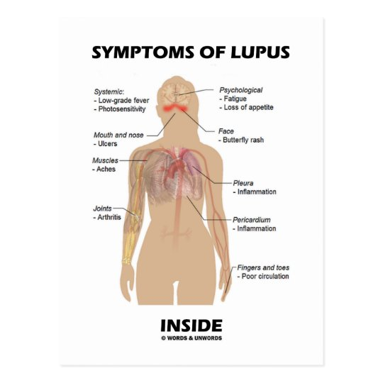 Postal Síntomas del interior del lupus (desorden