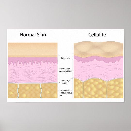 Poster de las celulitis de la piel póster