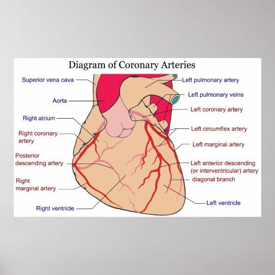 Póster Diagrama de las arterias coronarias de un corazón | Zazzle.es