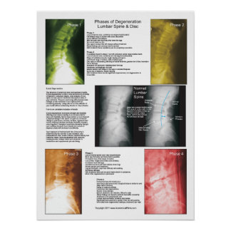 Poster espinal lumbar de la degeneración de las póster