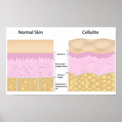 Póster Poster de las celulitis de la piel