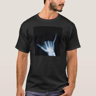 Radiografía de la muestra de Shaka (caída floja) Camiseta