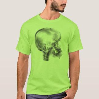 RADIOGRAFÍA del cráneo Camiseta