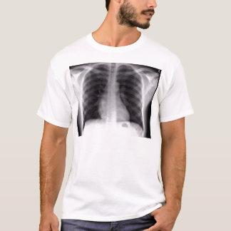 radiografía del pecho camiseta