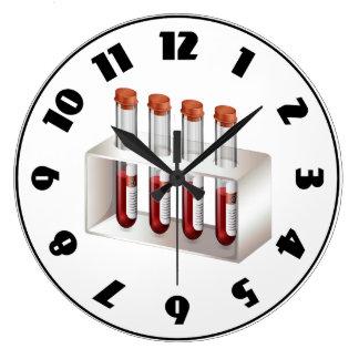 Reloj de las muestras de sangre