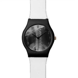 Reloj De Pulsera 2 radiografiados