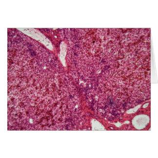 Tarjeta Células de hígado humanas con el cáncer debajo del