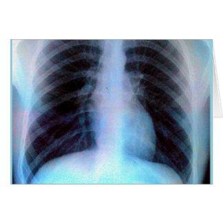 Tarjeta Esqueleto de la radiografía de Ribcage