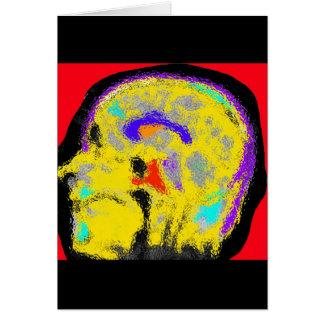 Tarjeta MRI sagital