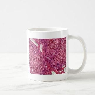 Taza De Café Células de hígado humanas con el cáncer debajo del