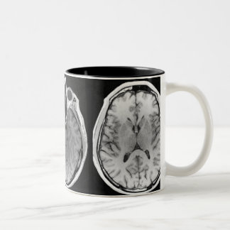 Taza de la imagen del cerebro de MRI