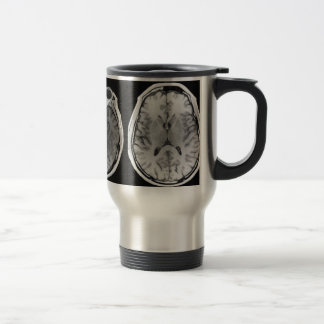 Taza del viaje de la imagen del cerebro de MRI