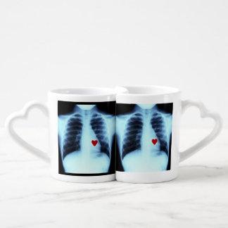 Tazas de los amantes de la radiografía de los