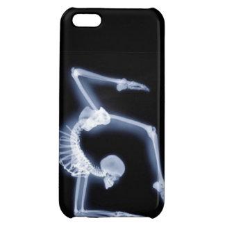 Un caso travieso del iPhone de la gimnasia