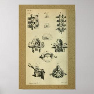 Vértebras espinales 1850 de la impresión de la