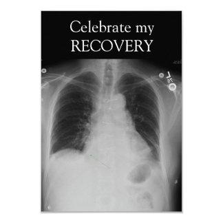X invitación del ~ de la recuperación del rayo